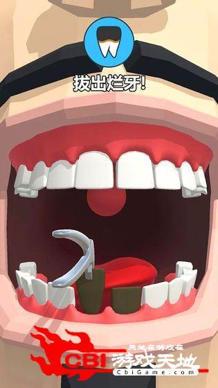 拔牙我最强图3